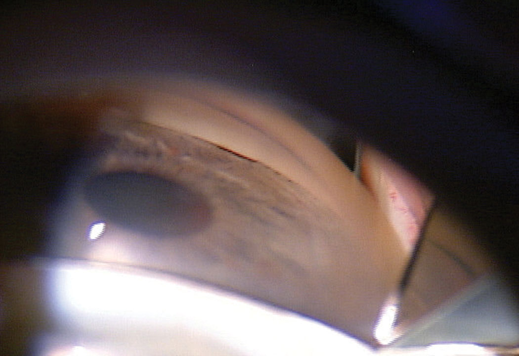 Fig 1. This patient's initial gonioscopy shows a narrow angle with the TM barely visible.