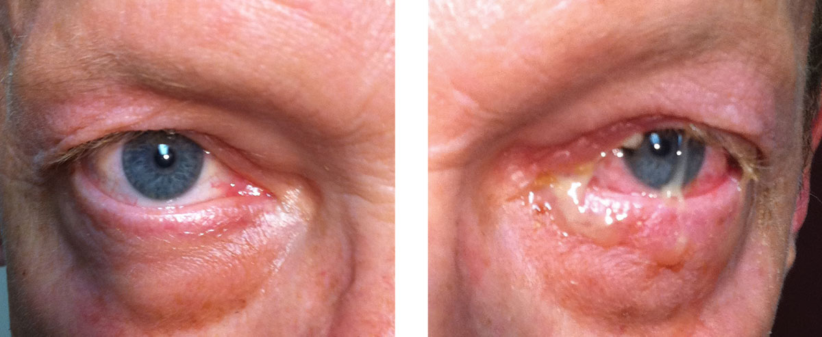 This patient's examination reveals acute bacterial conjunctivitis. Despite the severity of this infection, the location is limited to the conjunctiva, so using a topical antibiotic is an acceptable treatment choice. Appropriate topical choices include Polytrim, a fluoroquinolone (ciprofloxacin, ofloxacin) or tobramycin.1-4