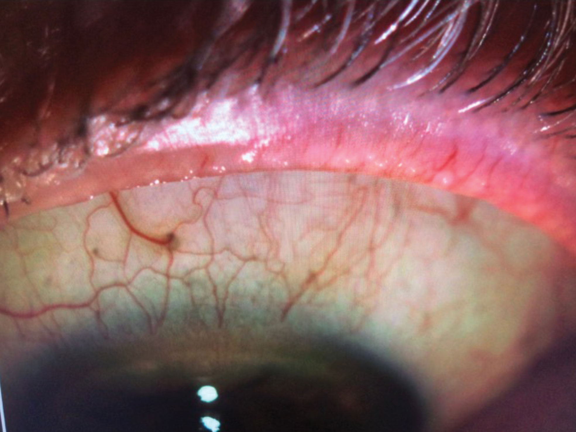 IPL can help remove telangiectasia in the eyelid margins of MGD patients.
